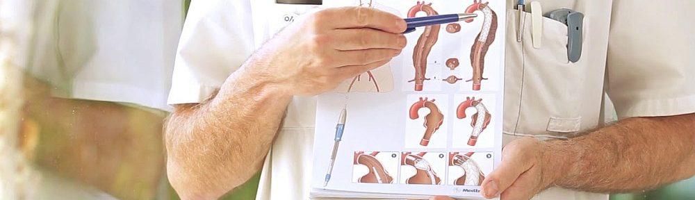 instructie aorta aandoeningen